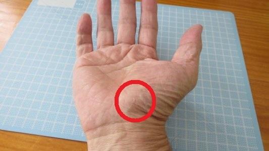 親指 の 付け根 痙攣